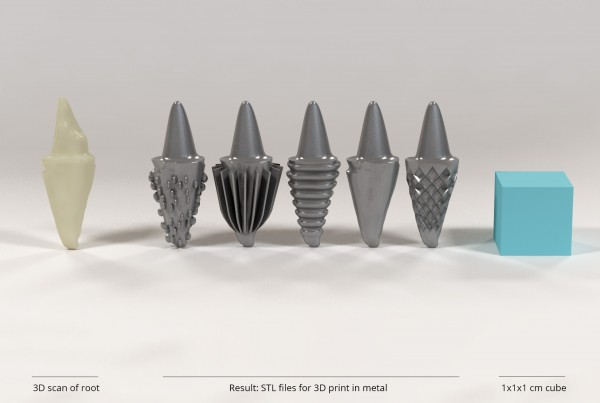 3D printed dental root implants